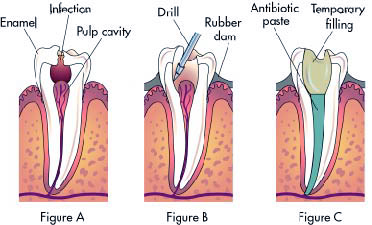 tooth-ache-figure-1
