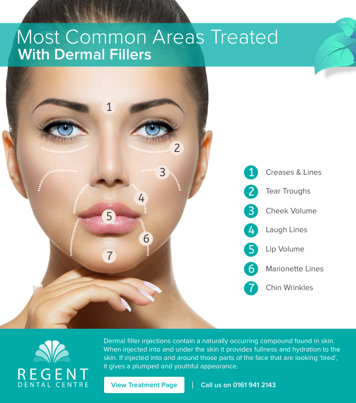 Most common areas treated with dermal fillers